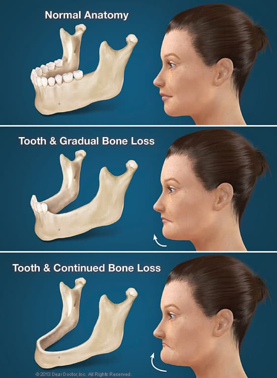 bone loss and dental implants