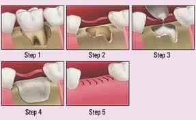 holistic bone graft