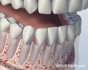 full mouth individual implants