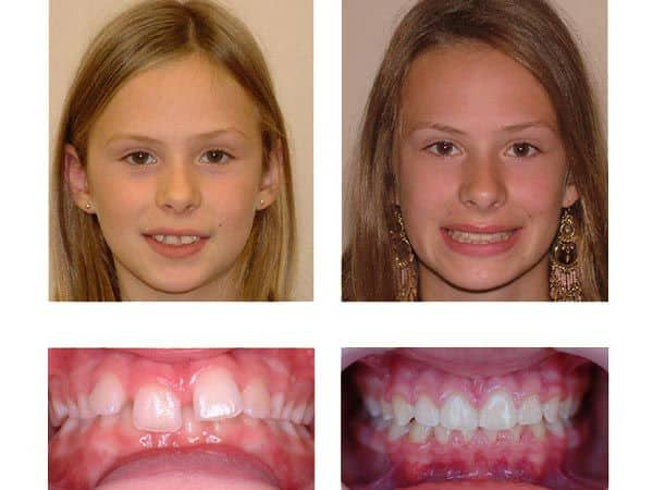 holistic orthodontic appliances