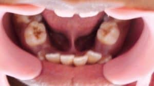 tongue tie crowded teeth