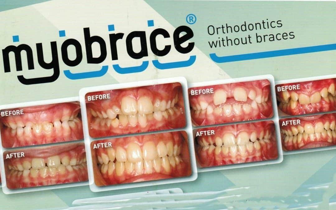 What is Myobrace Expander Treatment vs Braces?