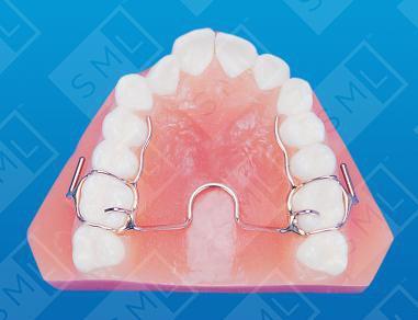 crozat maxillary expander
