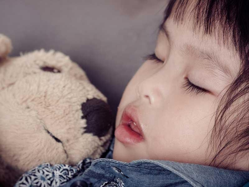kids sleep apnea dental appliance