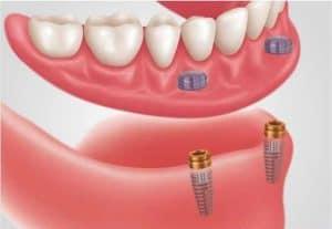snap on denture