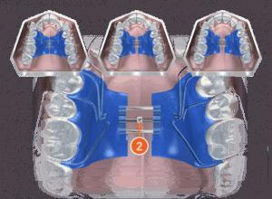 biobloc orthodontic appliance