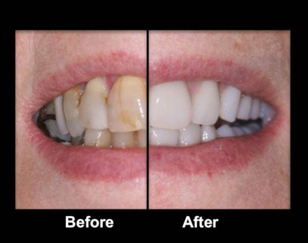 The Costs of Different Denture and False Teeth Types